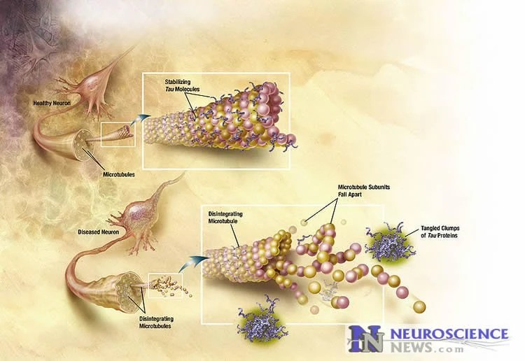 How Alzheimer's Protein Tangles Spread Through the Brain