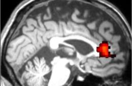 The acc is highlighted in this brain scan.