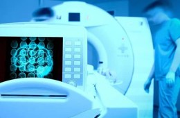 Image of an MRI machine wiht a brain scan on a computer monitor.