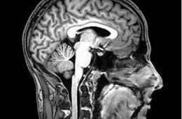 Image shows an fmri brain scan.