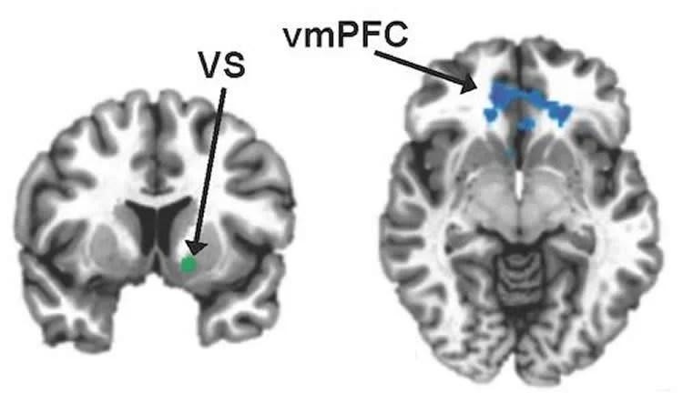 Reward Circuits Weakened by Inflammation in Depression