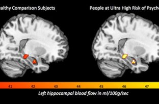 Image shows a brain scans with the hippocampus highlighted.