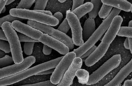 This is a picture of microbes under a microscope.