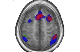 Brain scan showing different areas activated by bilingual and unilingual speakers.