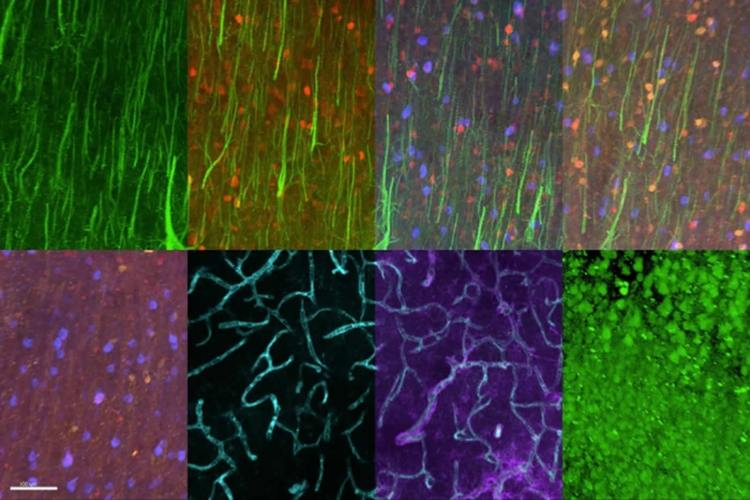 Image shows different brain tissue samples.