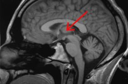 Brain scan with a red arrow pointing to the thalamus.
