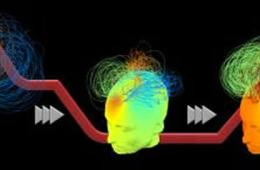 Diagram shows how brain networks during the transition to unconsciousness during propofol sedation.