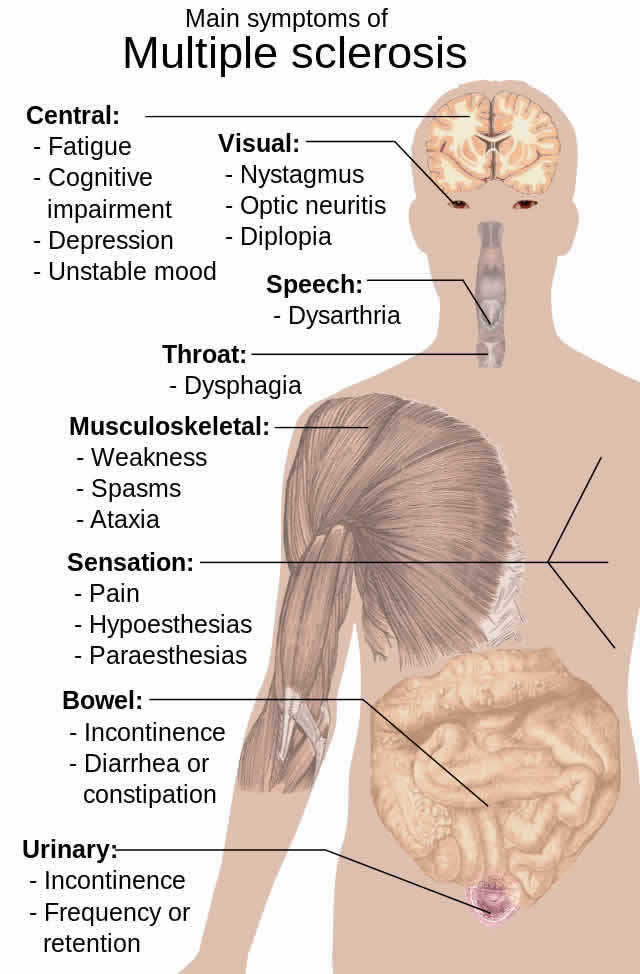 Diagram shows how MS affects the body.