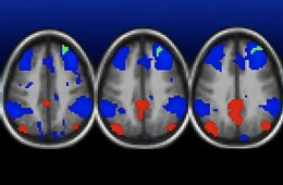 Image shows MRI scans from the study.