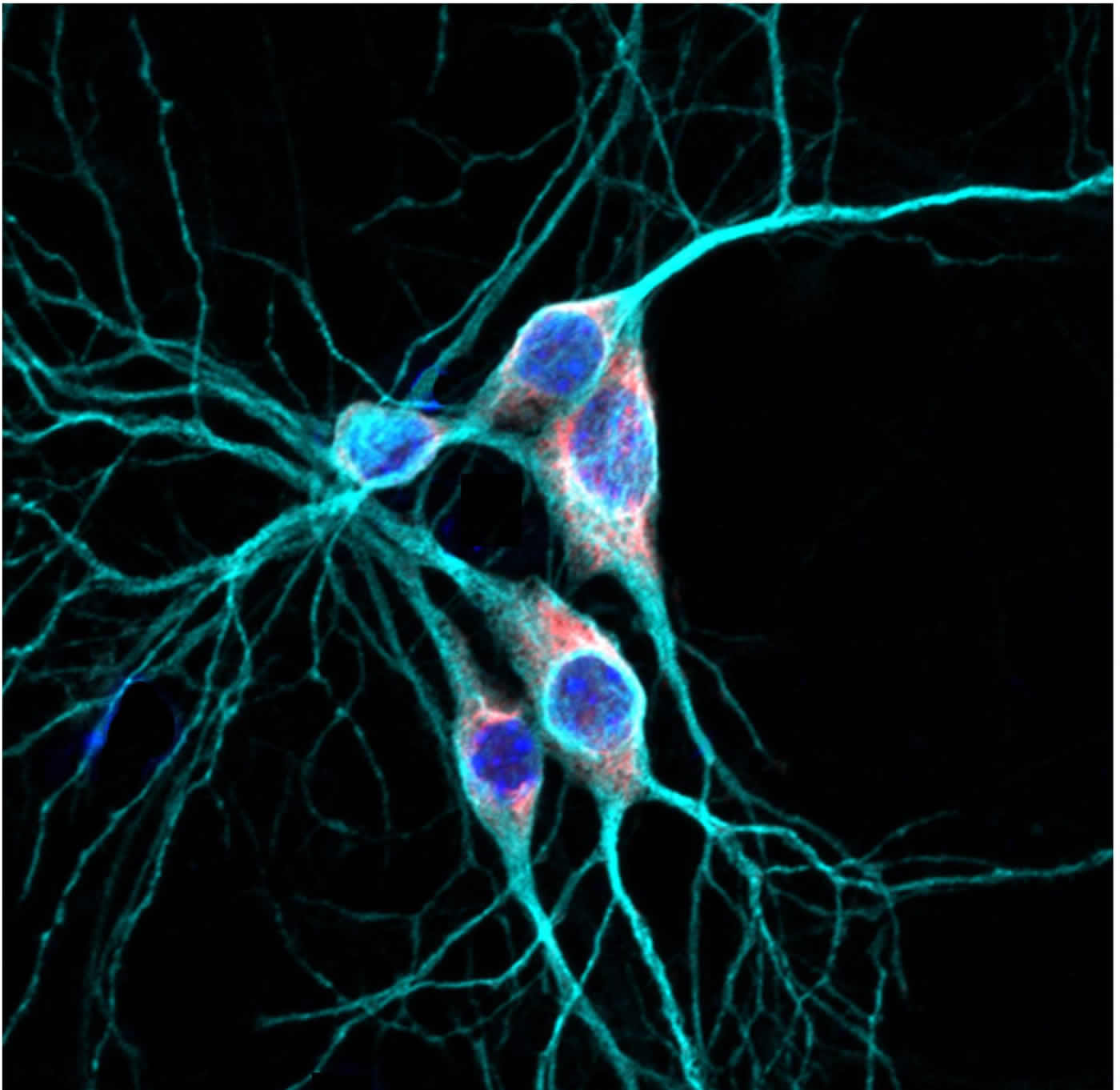 Shedding Light on How Genetic Mutations May Lead to Autism