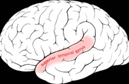 Image shows the location of the superior temporal gyrus in the brain.