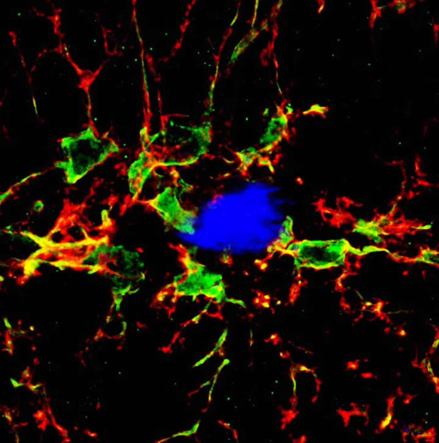 Image shows microglia and amyloid plaques in the brain of an Alzheimer's mouse model.