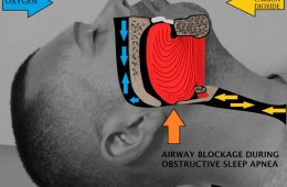 Image shows obstructive airway in a sleep apnea patient.