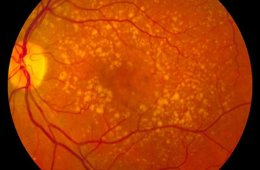 Image shows a fundus photo showing intermediate age-related macular degeneration.