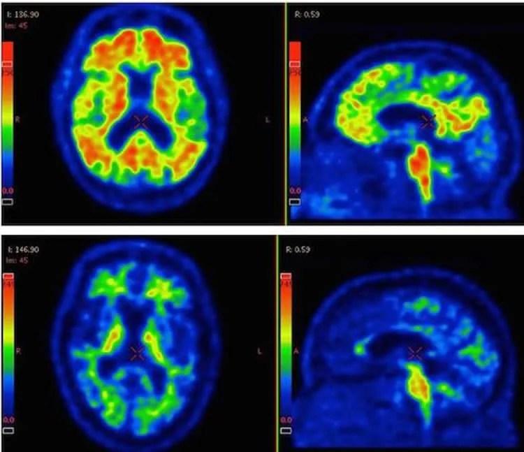 amyloid beta pet scans - Neuroscience News