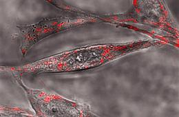 Image shows amyloid beta plaques.