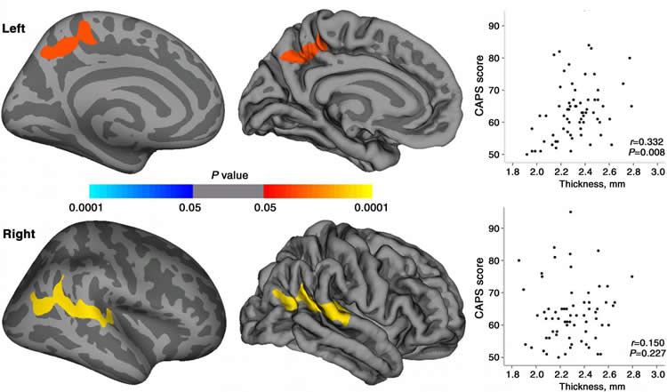 Image shows brain scans with the cortical thickness mapped.