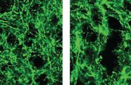 This image shows dopamine neurons.