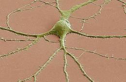 Image of a neuron.