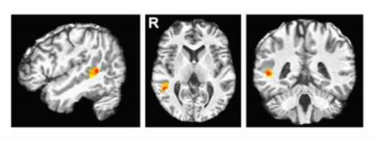 Image shows a brain scan with the pSTS highlighted.