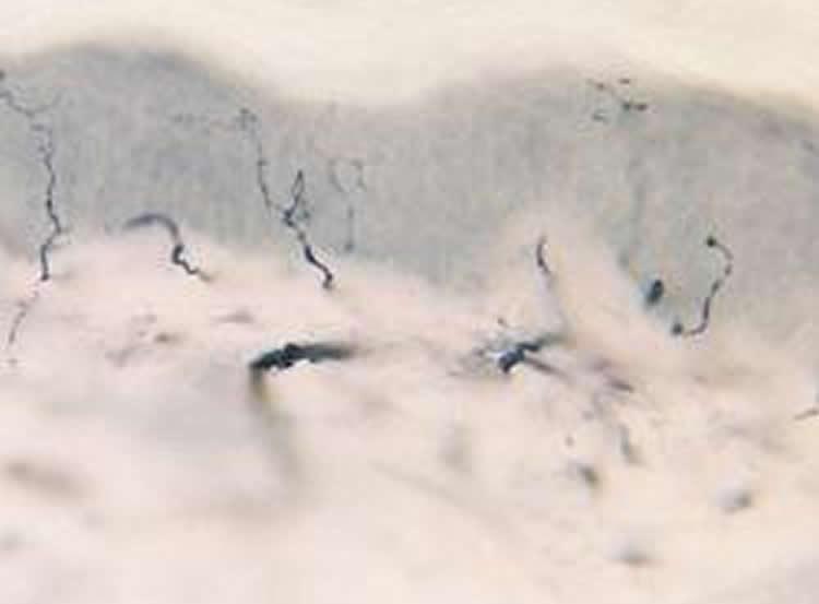 Image shows healthy nerve fibers.