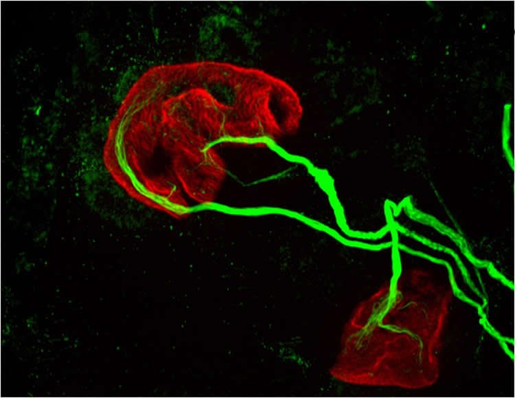 Image shows MCHI in motor neurons.