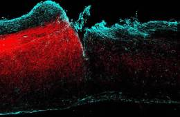 Image shows axons in the motor cortex.