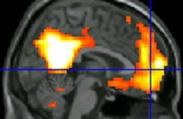 Image shows a brain scan from the study.