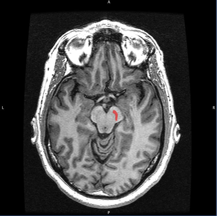 Image shows a brain scan with the SN highlighted red.