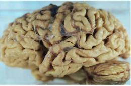 Image shows a brain of an alzheimer's patient.