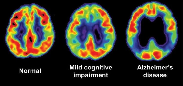 Image shows brain scans of a normal brain, a person with MCI and an Alzheimer's brain.