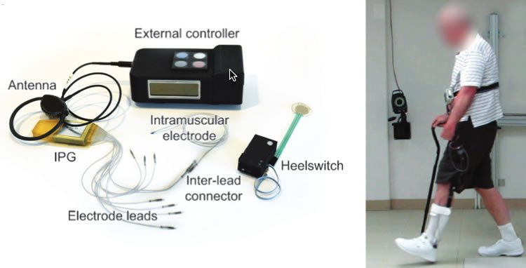 Image shows the patient walking and the device.