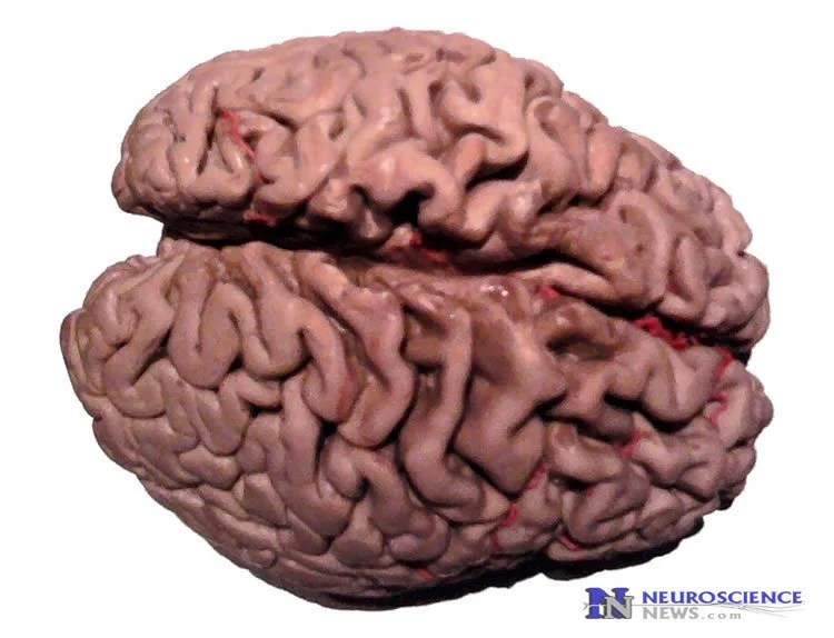 A New Model For How Alzheimer's Causes Dementia