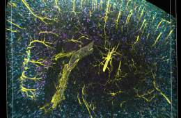 Image shows vasculature, glia cells, and plaques.
