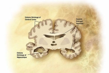 Image shows an illustration of a brain with Alzheimer's disease.