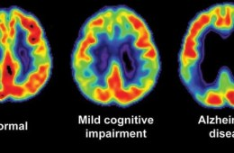 Image shows a brain scans from a normal, alzheimers and MCI brains.