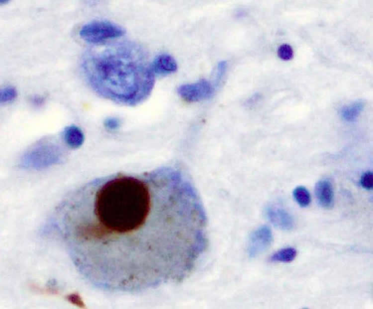 Image shows stained brain slice for alpha synuclein.