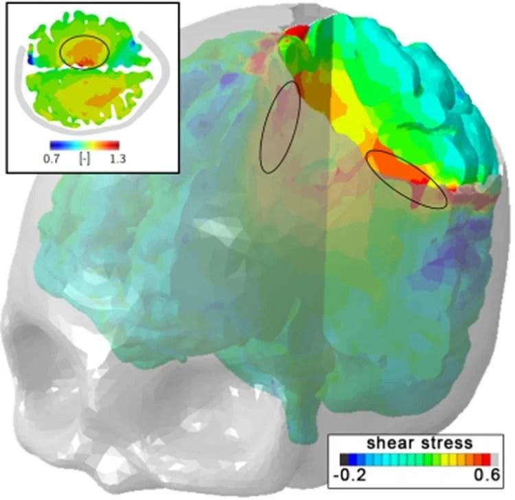 Image shows an MRI brain scan.