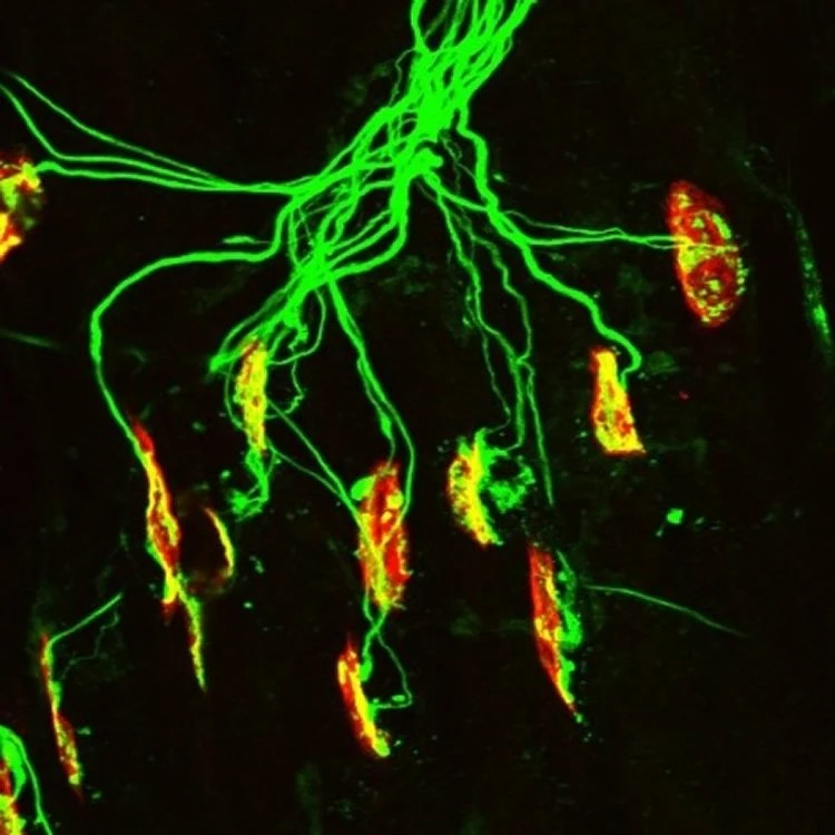 Image shows a neuromuscular junction.