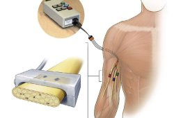 Image shows a how the electrodes were implanted into the arm stump.