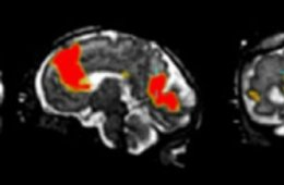 Image shows an MRI of a fetal brain.