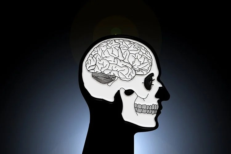 Image shows a head and brain.