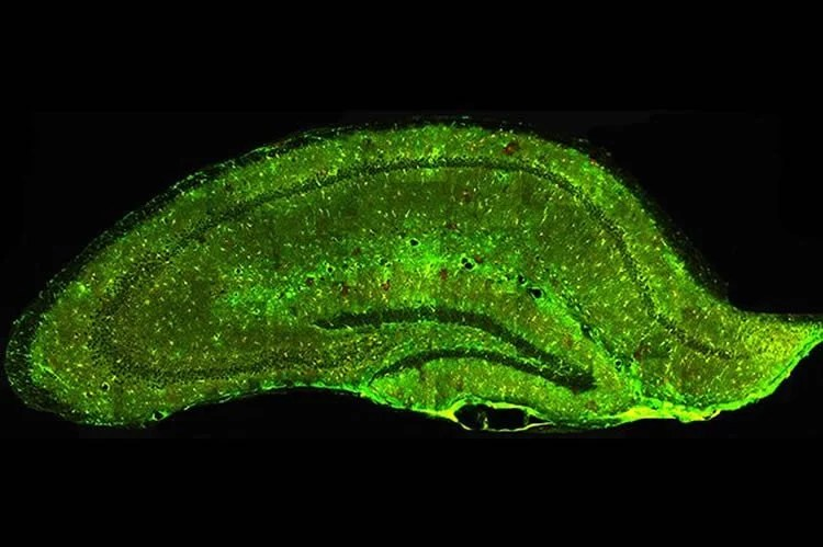 Image shows a mouse hippocampus.