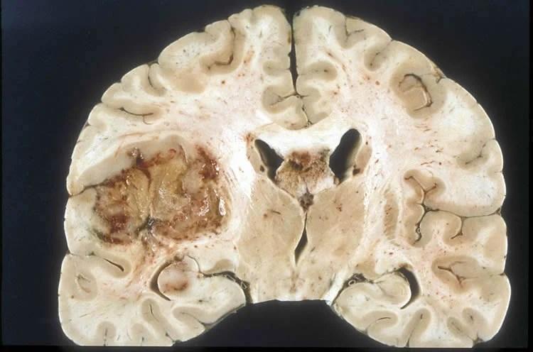 Image shows a glioblastoma brain tumor.