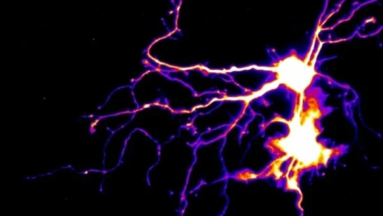 Image shows neurons and dendrites.