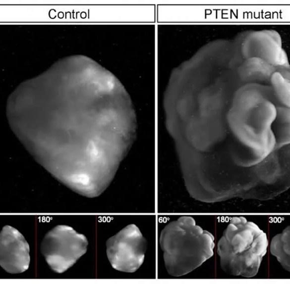 Image shows a brain organoid.