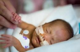 Image shows a preterm baby.