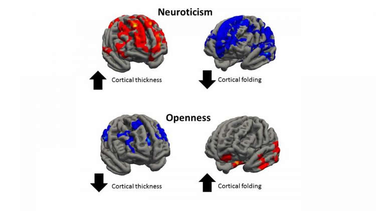 Image shows cortical thickness associated with neuroticism.