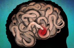 Image shows a brain made of snakes.