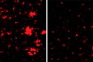 Image shows brain slices from a mouse with Alzheimer's disease.